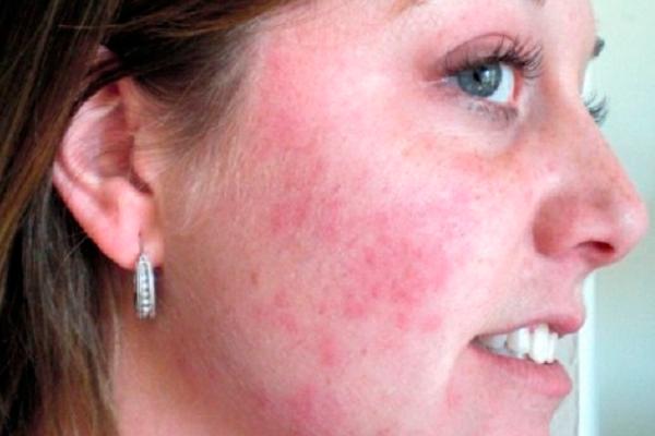 Аллергическая реакция на клубнику