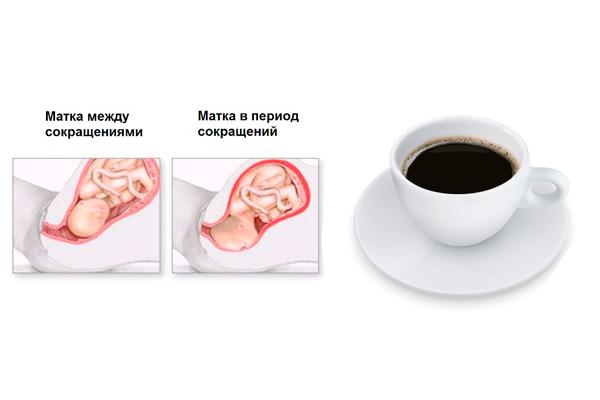 Возможный тонус матки в следствии употребления кофе беременной