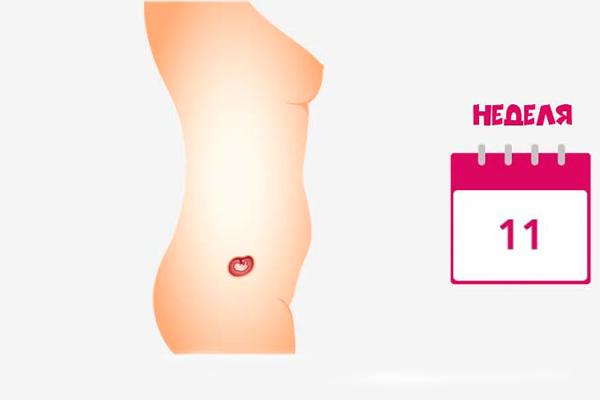 Проведение первого скринига на 11-й недели беременности