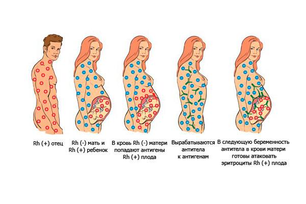 Схема образования резус-конфликта при беременности