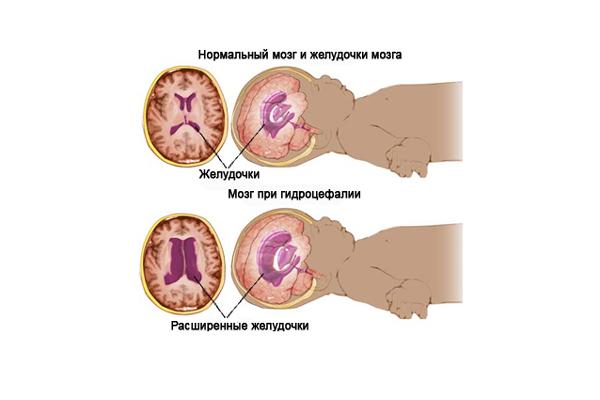 Превышение нормы БПР из-за гидроцефалии