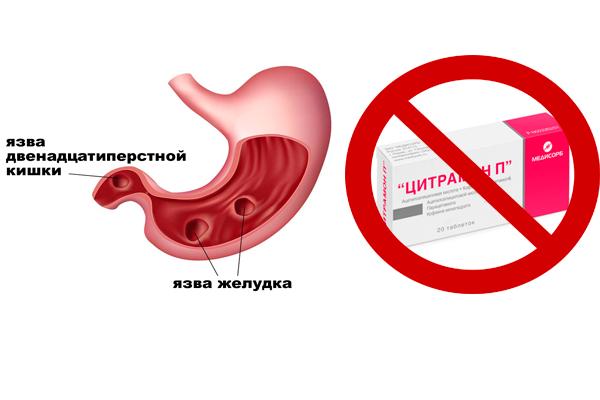 Запрет на прием Цитрамона из-за язвы желудка