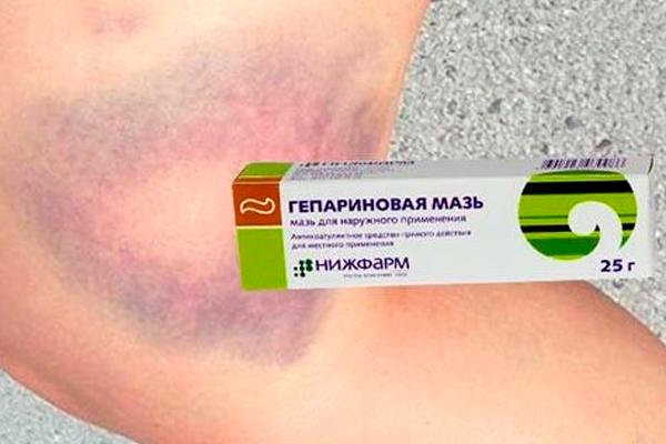 Гепариновая мазь в помощь при синяках