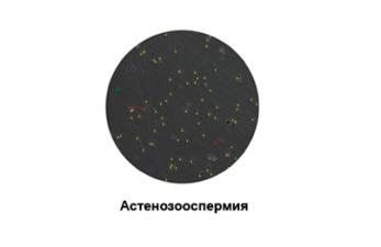 Астенозооспермия: причины развития и стадии заболевания
