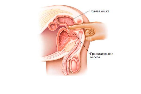 Массаж простаты для лечения астенозооспермии