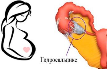 Беременность и гидросальпинкс: возможно ли зачатие?