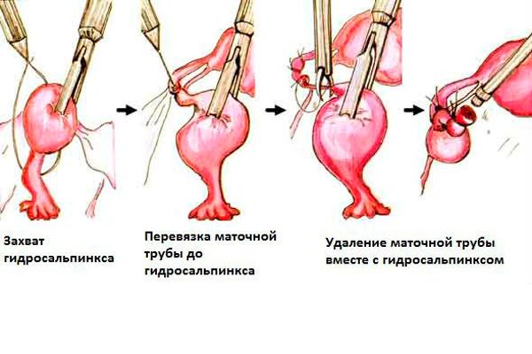 Схема лапароскопической операции по удалению гидросальпинкса