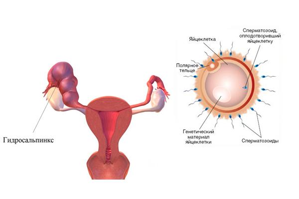 Возможное зачатие при гидросальпинксе