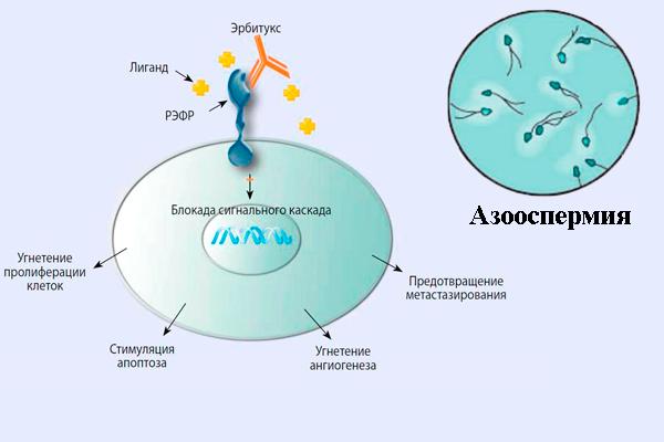 Азооспермия у мужчин из-за воздействия химиотерапии