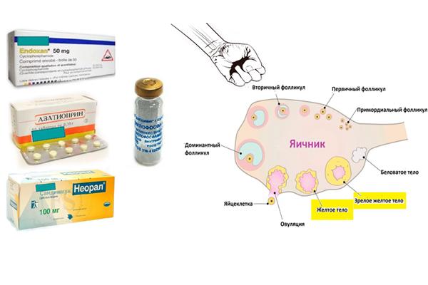Разрушение фолликулов у женщины в следствии приема цистостатических препаратов