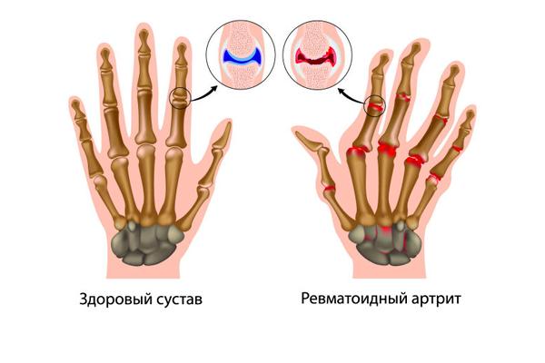 Применение лекарства Метипред при ревматоидном артрите