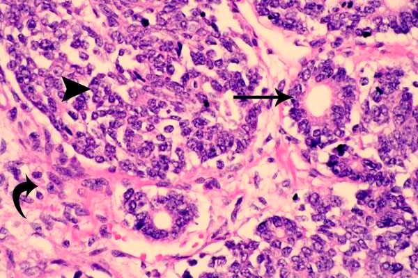 Возможная эмбриональная опухоль Вильмса