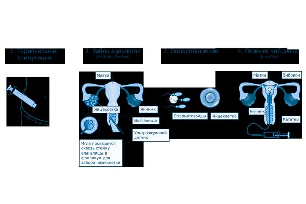 Этапы процедуры ЭКО