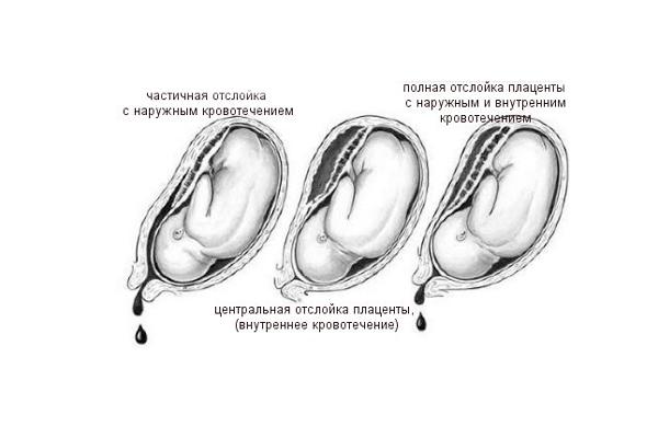 Возможная отслойка плаценты из-за дефицита фолиевой кислоты