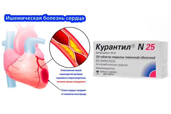 Применение лекарства Курантил при ишемической болезни сердца