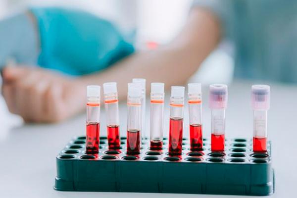 Сдача анализа крови для определения причины желания есть мел при беременности
