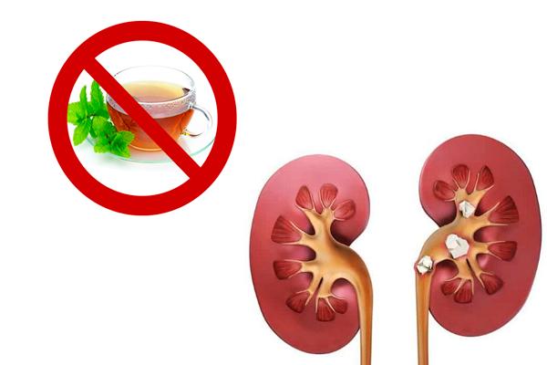 Запрет на мятный чай при камнях в почках