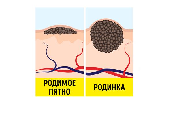 Процесс перерождения родимого пятна в родинку