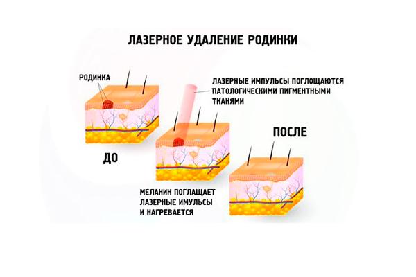 Схема операции по удалению родинки лазером