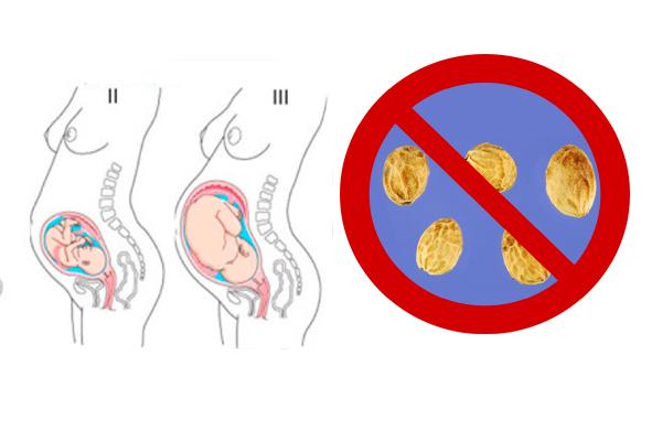 Запрет на употребление косточек плодов черемухи на позднем сроке беременности