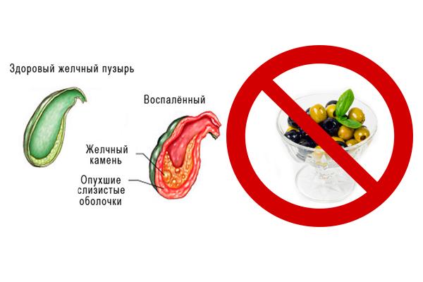 Запрет на употребление оливок и маслин при заболеваниях желчного пузыря