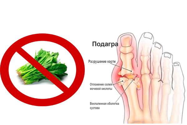 Запрет на употребление шпината при подагре