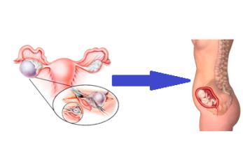 Беременность с одним яичником: возможно ли стать мамой при таких обстоятельствах?