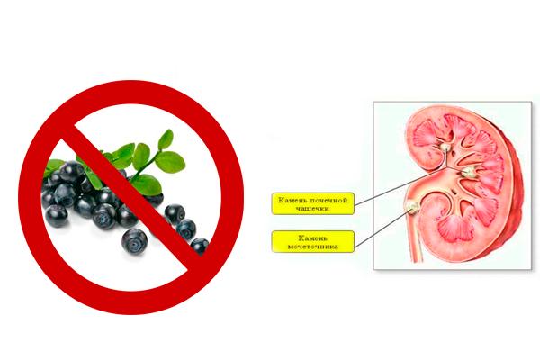 Запрет на употребление черники при мочекаменной болезни