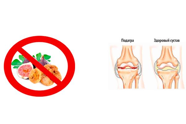 Запрет на употребление инжира при подагре