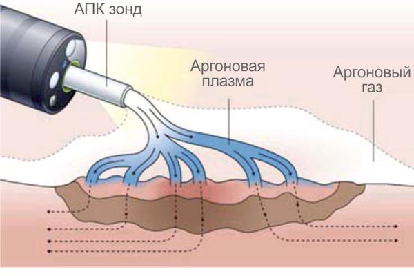 Аргоплазменная коагуляция для лечения аденомиоза