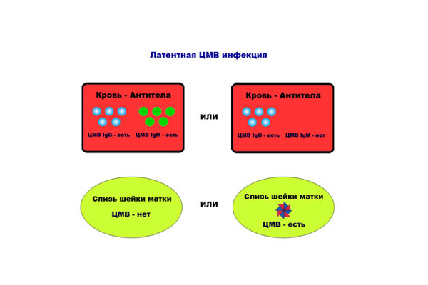 Схема лагентной ЦМВ-инфекции