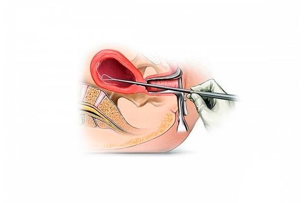 Выскабливание эндометрия при лечении ановуляторной метроррагии