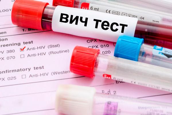 Анализ крови на ВИЧ перед аспирацией эндометриальных тканей