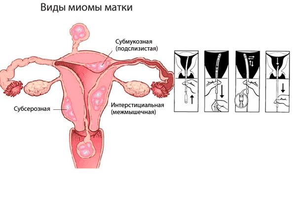 Взятие аспирата из полости матки в случае миомы
