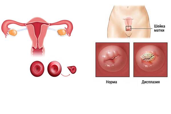 Применение конизации при дисплазии шейки матки